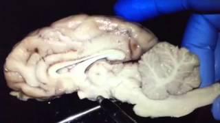 Sheep Brain Identification