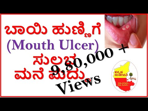 Home Remedies For Mouth Ulcer...Kannada Sanjeevani..