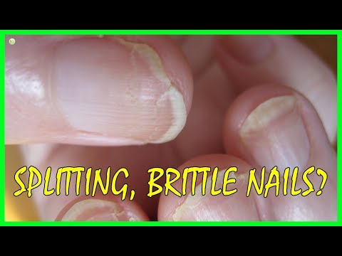 This Is Why Your Nails Keep Splitting - Brittle Nails Causes - Best Home Remedies