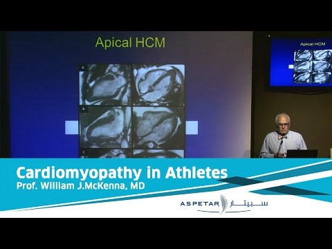 Cardiomyopathy in Athletes: lessons from history