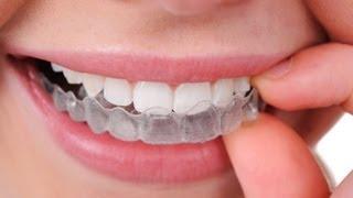 Ortodoncia invisible... Inicia INVISALIGN!