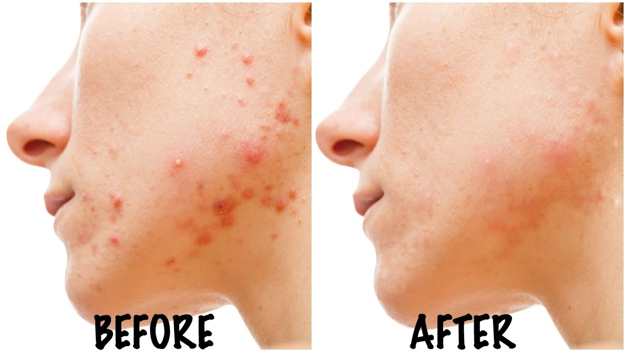 How to get rid of acne in 5 days
