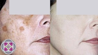 How to Get Rid of Dark Spots and Age Spots on Face