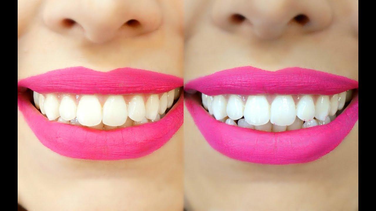 Dentes Brancos Em 2 Minutos Receita Caseira Clareamento Dental