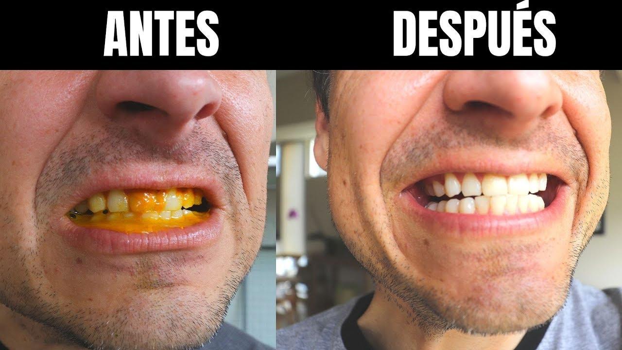 el curcuma blanquea los dientes