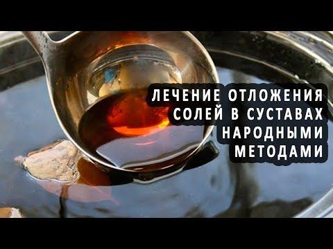 Устранение отложения солей в суставах методами народной медицины