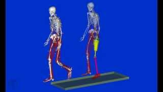 Normal Human Gait vs Human gait with prosthesis OpenSim