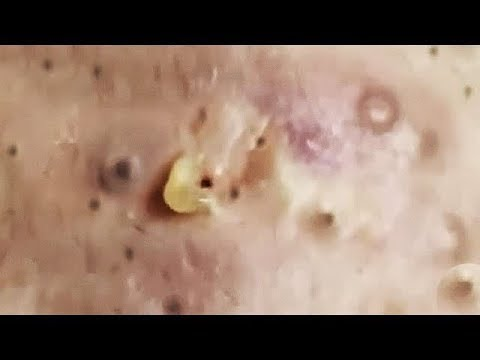 What is the best option of popping your pimple