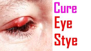 How To Treat Eye Stye | How To Get Rid Of Eye Stye
