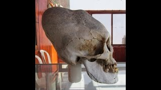 Newly Discovered Elongated Skulls In Paracas Peru