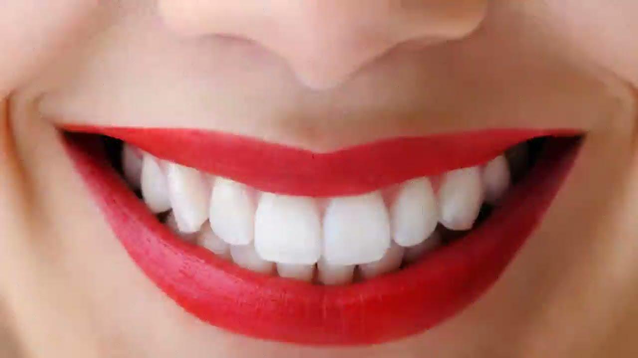 Terungkap Cara Memutihkan Gigi Secara Alami Dan Permanen Youtube