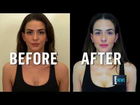 E! News Bra Fat Melting- Dr Raj Kanodia, Beverly Hills