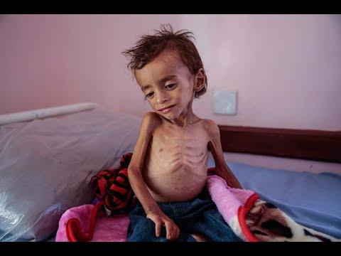 Global Journalist: Starving Yemen