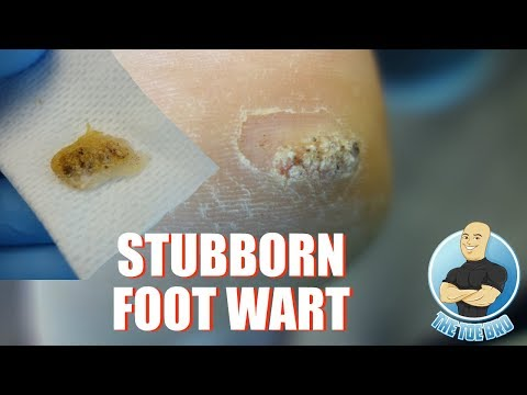 HOW TO TREAT DIFFICULT PLANTAR WARTS REMOVAL - FOOT HEALTH MONTH 2018 #9