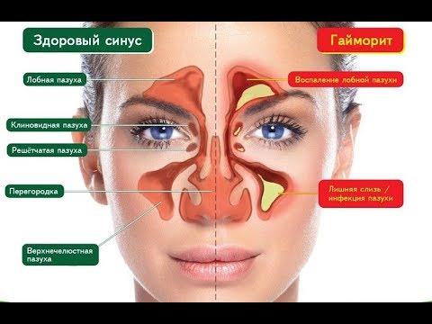 Как Избавься от Инфекции Носовых Пазух !