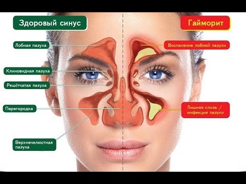 Ноздри внутри болят