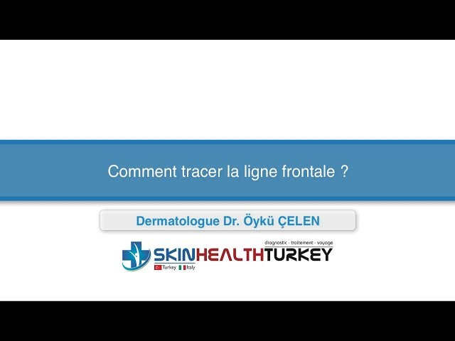 Greffe de cheveux Turquie – Comment tracer la ligne frontale? – Dr. Öykü Çelen