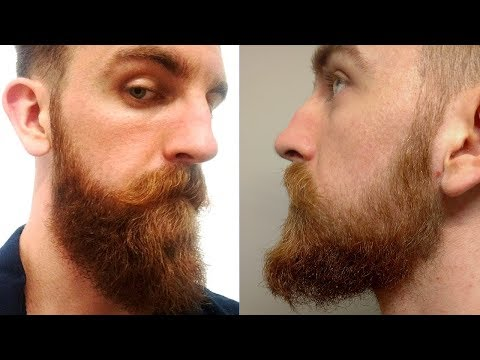i-lost-my-minoxidil-beard-gains!-minoxidil-isn't-permanent?-|-yeard-week-7