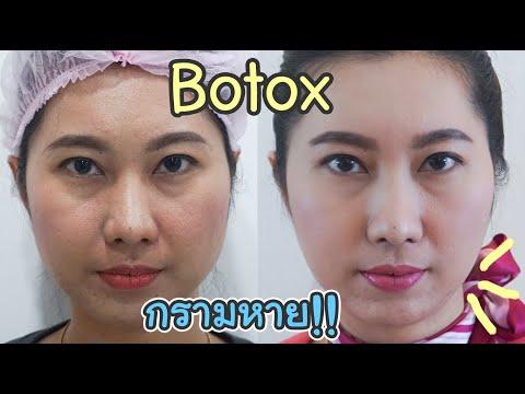 Botox ลดริ้วรอย ถึงกับขมวดคิ้วไม่ได้ จริงมั้ย? ไปดูในคลิป  By อาจารย์หมอจิ ฟีร์บิวตี้คลินิก