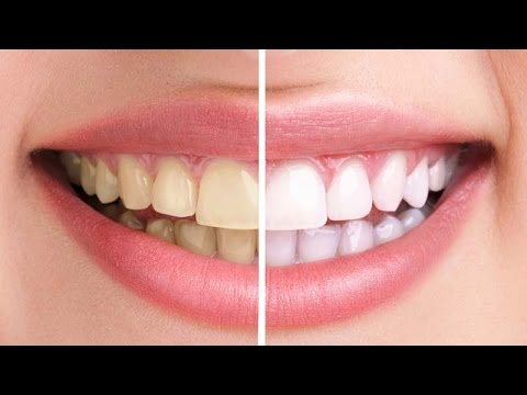 Photoshop Cc Whiten Teeth Very Quick Tip Youtube