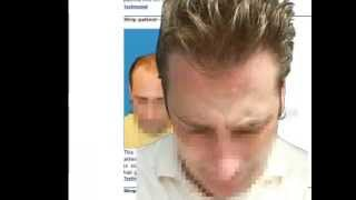 Best FUE Hair Transplant -