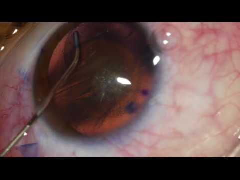 Christmas Tree Cataract Youtube