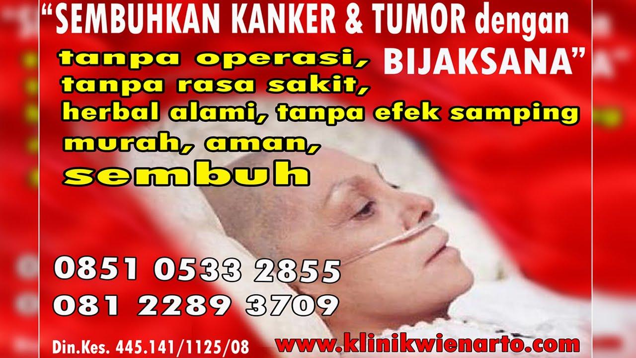 kanker lambung & kanker otak - YouTube