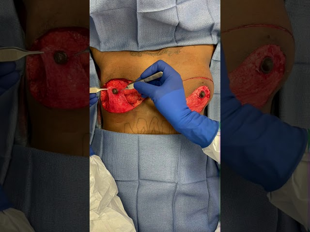 Inside the OR: FTM Top Surgery