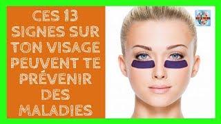 Ces 13 signes sur ton visage peuvent te prévenir des maladies