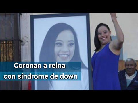 Zacatecas corona a reina de belleza a joven con síndrome de down