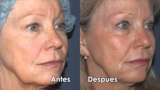 Botox para las arrugas faciales | Dr. Sabrina Fabi Thumbnail
