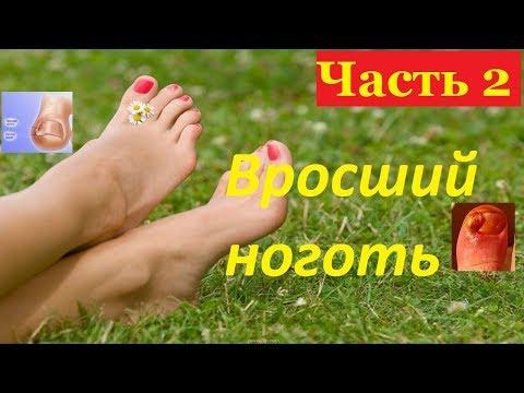 Лечение вросшего ногтя без операции часть 2. Дикое мясо на пальце