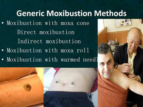 Acupuncture and Moxibustion
