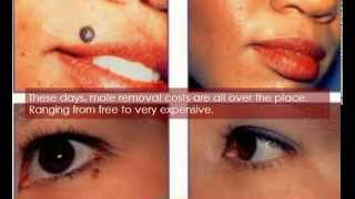 How Much Does Laser Mole Removal Cost