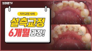 대전교정치과,대전치아교정 : 설측교정 전,후 비교 영상…