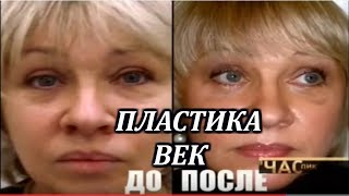 Пластика век. Певица Ирина Грибулина.