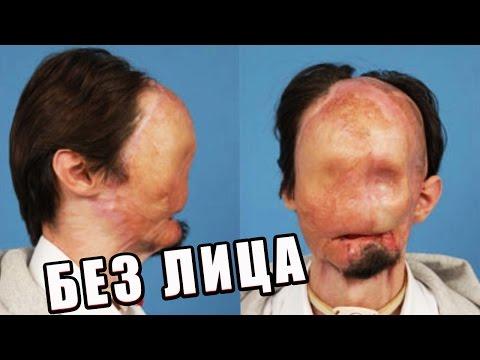 БЕЗ ЛИЦА