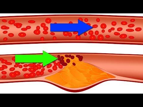 ЭТИ 5 Продуктов Забивают Сосуды и Вызывают Инфаркт (Не Рискуйте)