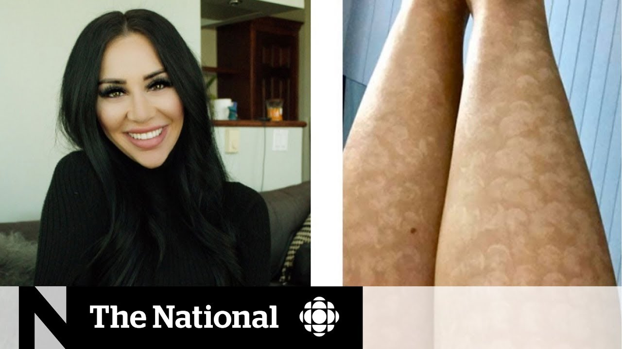 Laser Hair Removal Leaves Woman With Intense Scarring Youtube