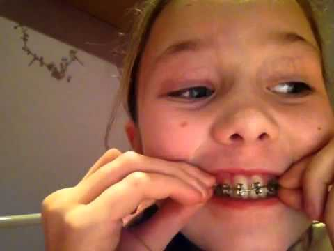 How to make fake braces for a nerd costume youtube how to make fake braces for a nerd costume solutioingenieria Images