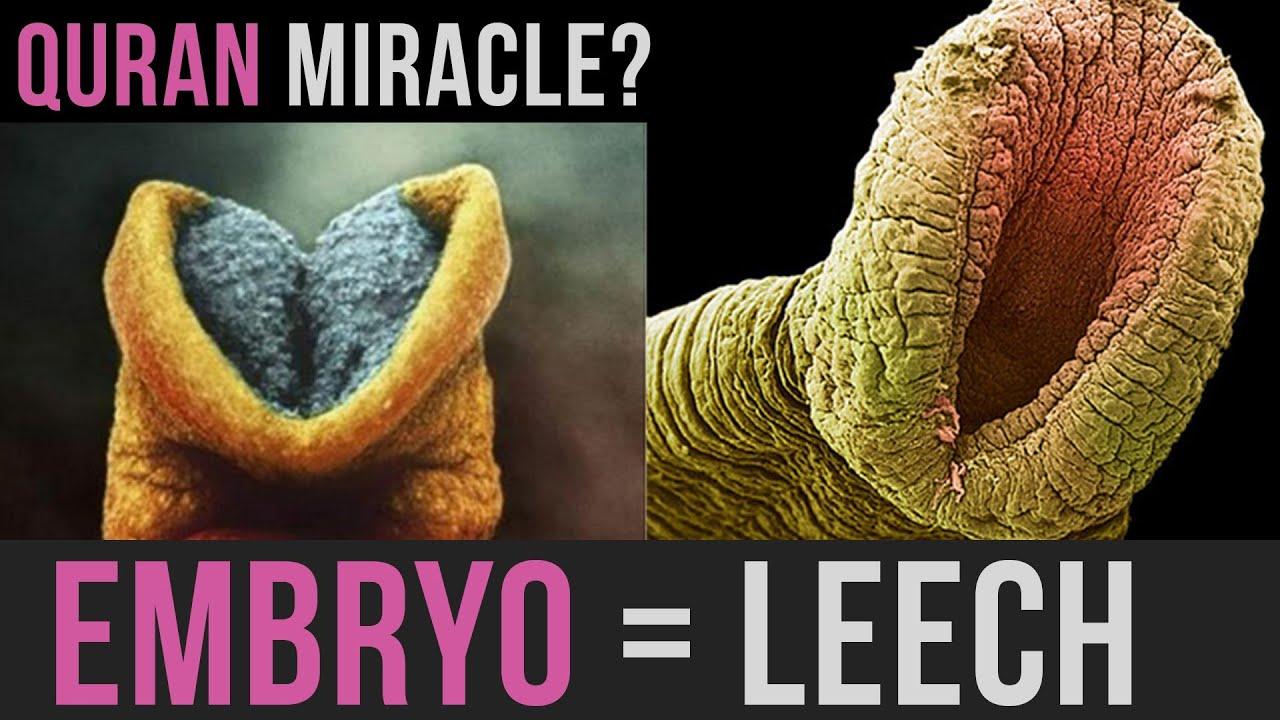 EMBRYO = LEECH | AMAZING QURAN MIRACLE | #MINDBLOW - YouTube