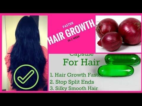बालों के लिए प्याज का रस |Onion Juice for Hair Super growth hindi || stop Hair Loss, Dandruff Remove