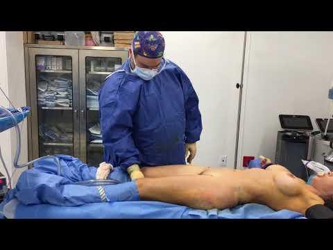 Umbilicoplasty, Liposuction of Inner Thighs and Inner Knees