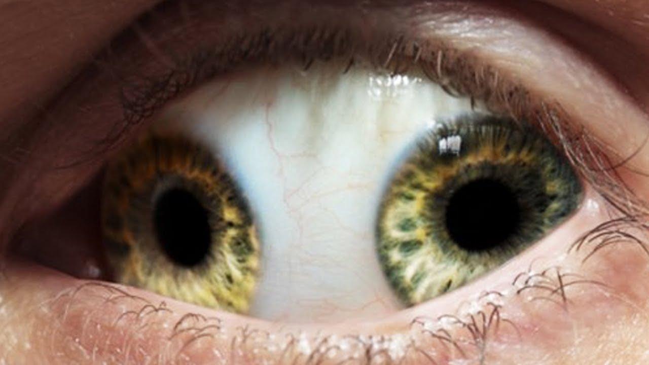 दुनिया की 10 सबसे अजीब बीमारियाँ | Strangest Medical Conditions