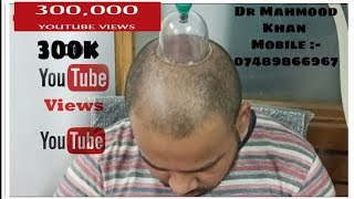 Hair Growth Treatment By Hijama Cupping Therapy