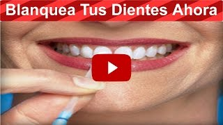Elimina El Sarro Y Blanquea Tus Dientes En 15 Min Con ESTA Receta Que Un Dentista JAMÁS Te Dirá