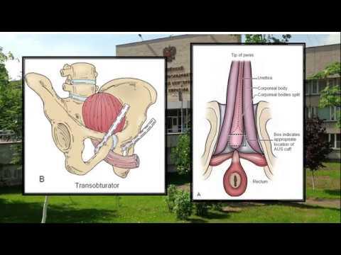 Видео Stress incontinence sling