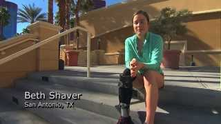 Beth Shaver Patient Profile:  ExoSym/IDEO Kinetic Orthosis