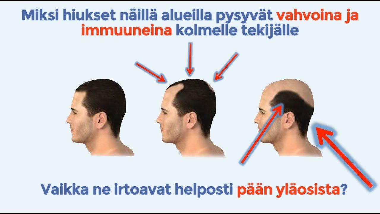 testosteroni kaljuuntuminen