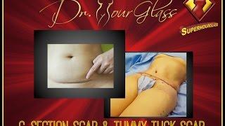 Tummy Tuck Scar And